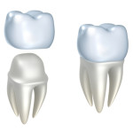 Various Types Of Dental Crowns