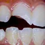 What Can Be Done With A Chipped Or Cracked Tooth?