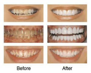 dental-veneers-petaluma-300x241