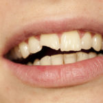 4 Ways Your Dentist Can Treat a Broken Tooth