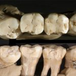 Dr. Neanderthal DDS Performs Prehistoric Dentistry