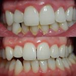 Gingivitis: You Probably Have It